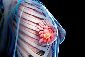 Cáncer de mama. Actualización y tendencias futuras